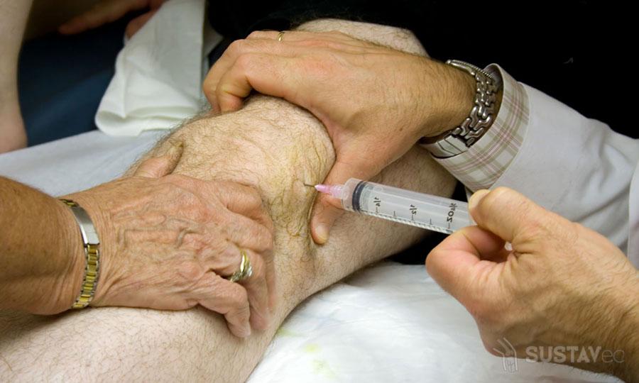 Блокада коленного сустава: выбираем эффективные препараты 70-3