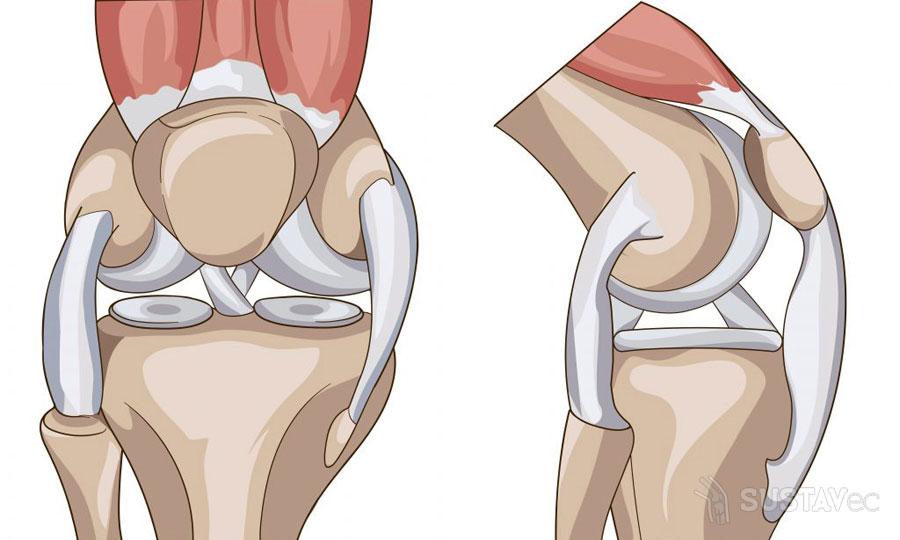Лечение после травмы мениска коленного сустава: методики и упражнения 71-2