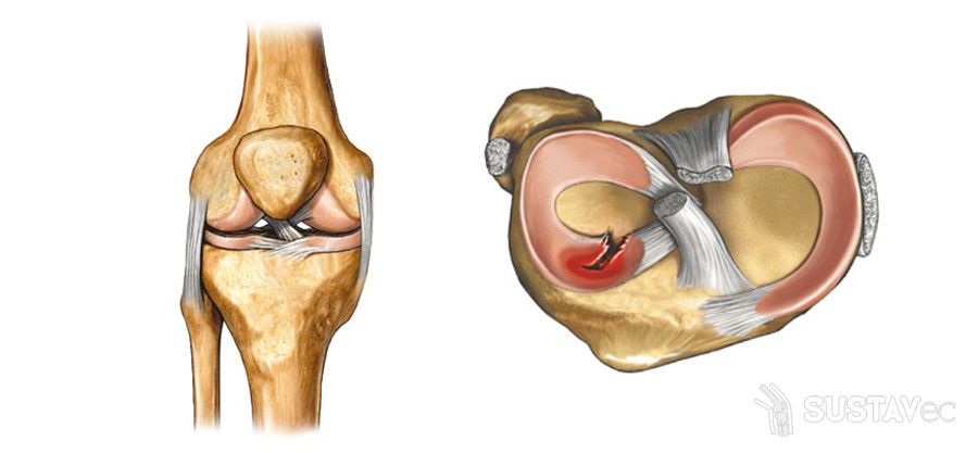 Лечение после травмы мениска коленного сустава: методики и упражнения 71-4