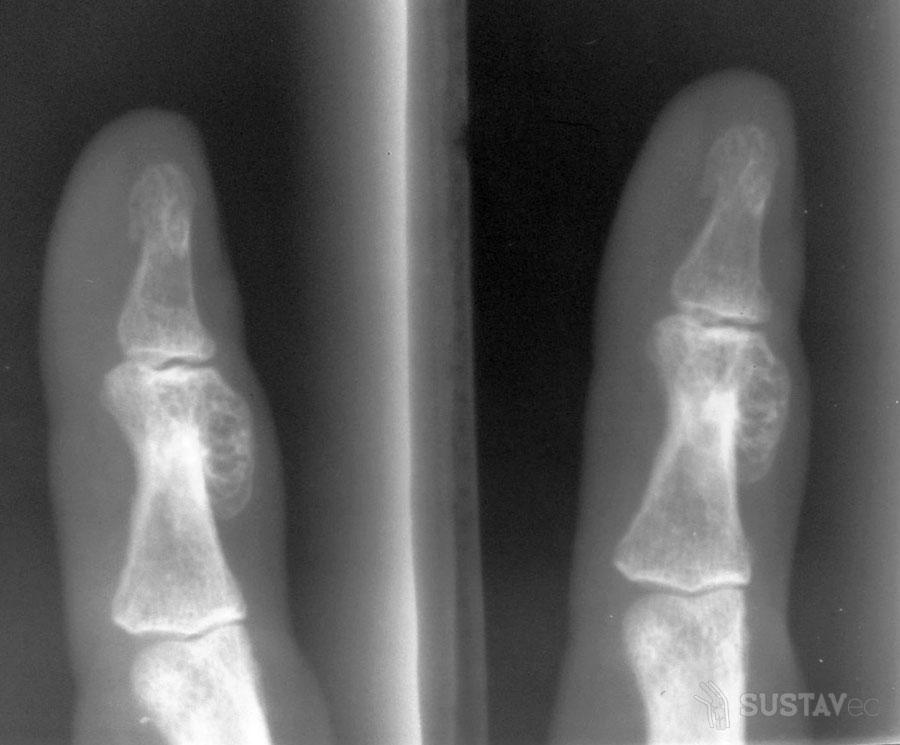 Энтезопатия коленного сустава - что это такое? 74-3