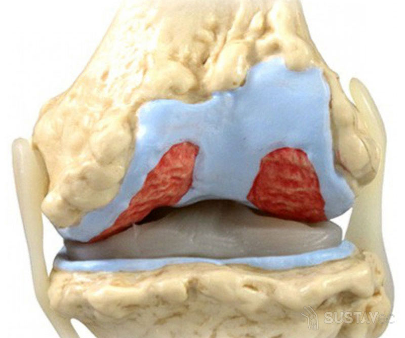 Отложение солей в коленном суставе: можно ли лечить дома? 75-2