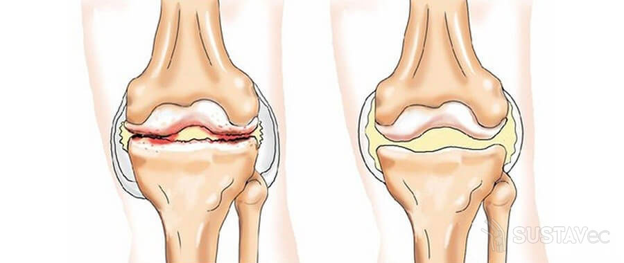 Отложение солей в коленном суставе: можно ли лечить дома? 75-3
