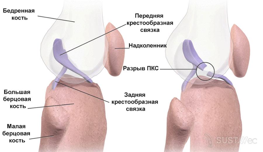 Симптомы и лечение повреждения связок коленного сустава 78-4