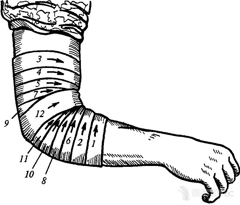 Сходящаяся черепашья повязка на локтевой сустав видео поврежденный сустав колена