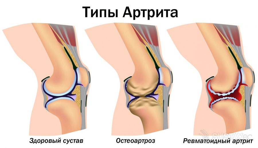 Симптомы и лечение артрита локтевого сустава 16-2