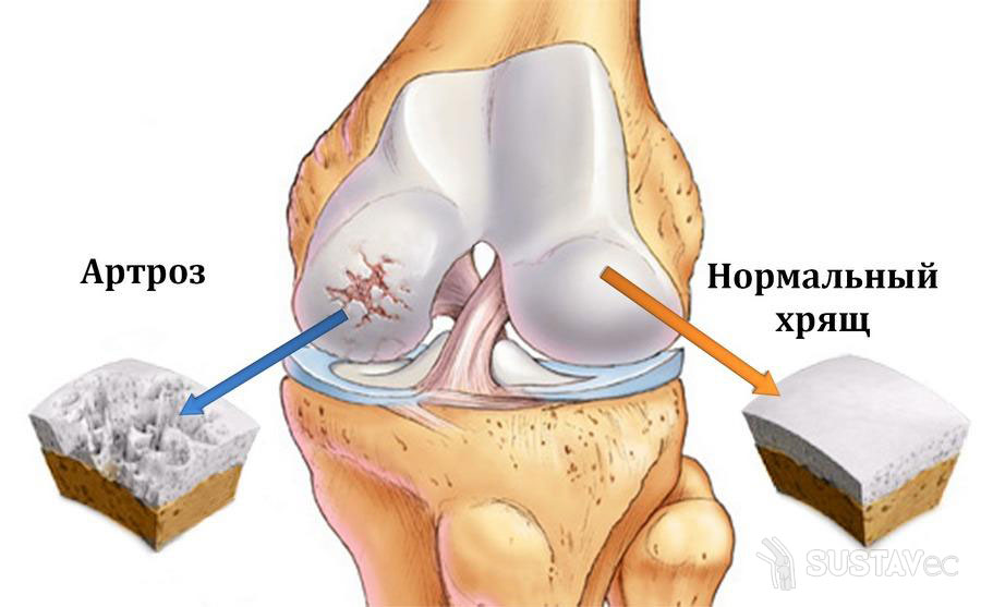 Симптомы и лечение артрита локтевого сустава 16-3