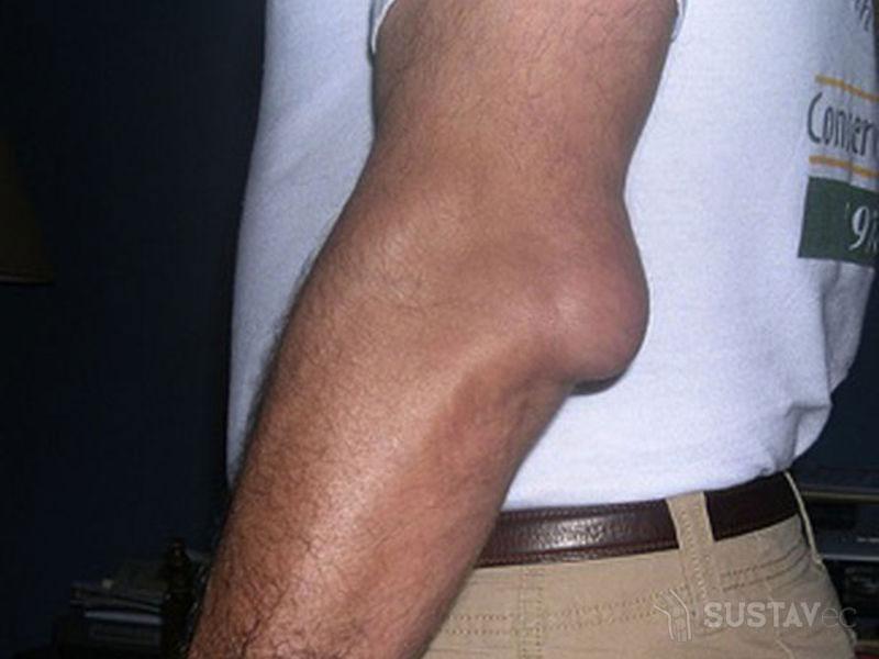 Причины появления жидкости в локтевом суставе 18-1