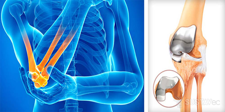 Тендинит локтевого сустава — симптомы и методы лечения 19-1
