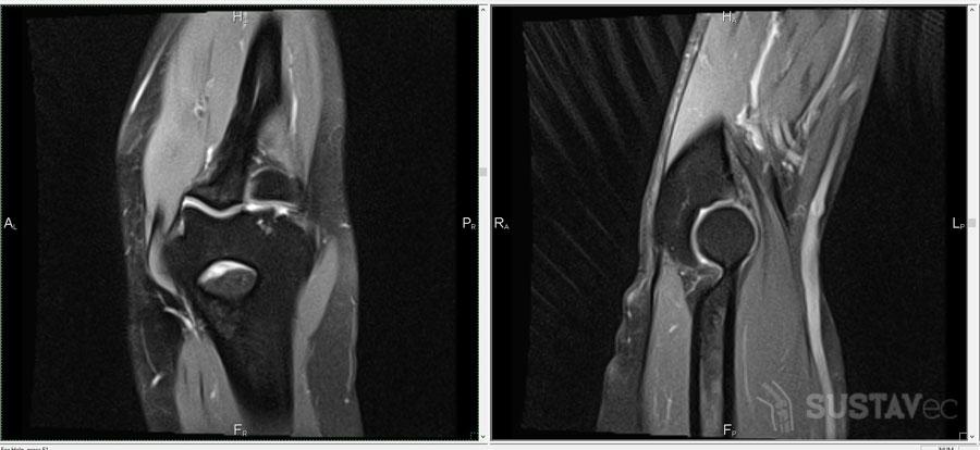 Тендинит локтевого сустава — симптомы и методы лечения 19-3