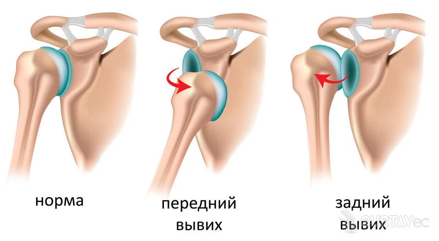 Что делать если болит рука от плеча до локтя 2-1