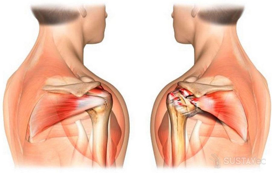 Что делать если болит рука от плеча до локтя 2-2