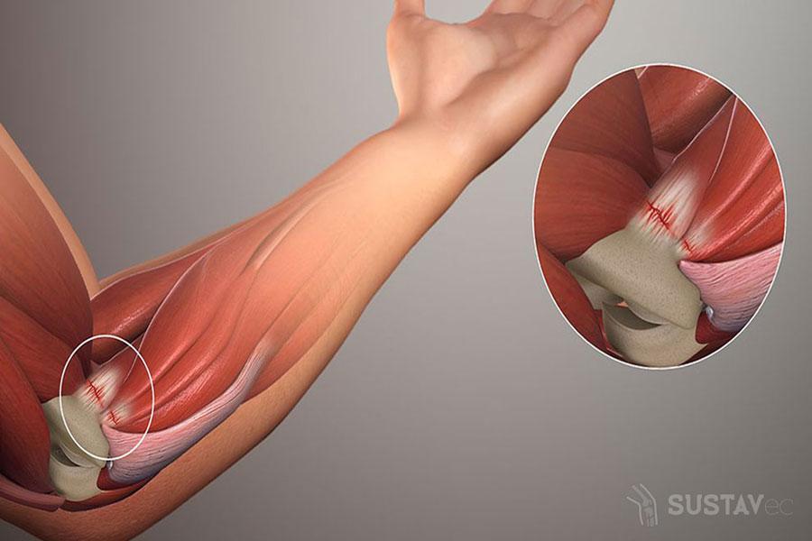 Жжение внутренней стороны локтевого сустава дисплазия тазобедренного сустава у щенка