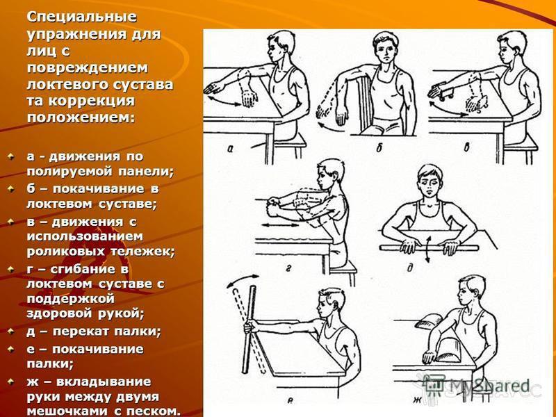 Как избавиться от жжения в локтевом суставе 24-8