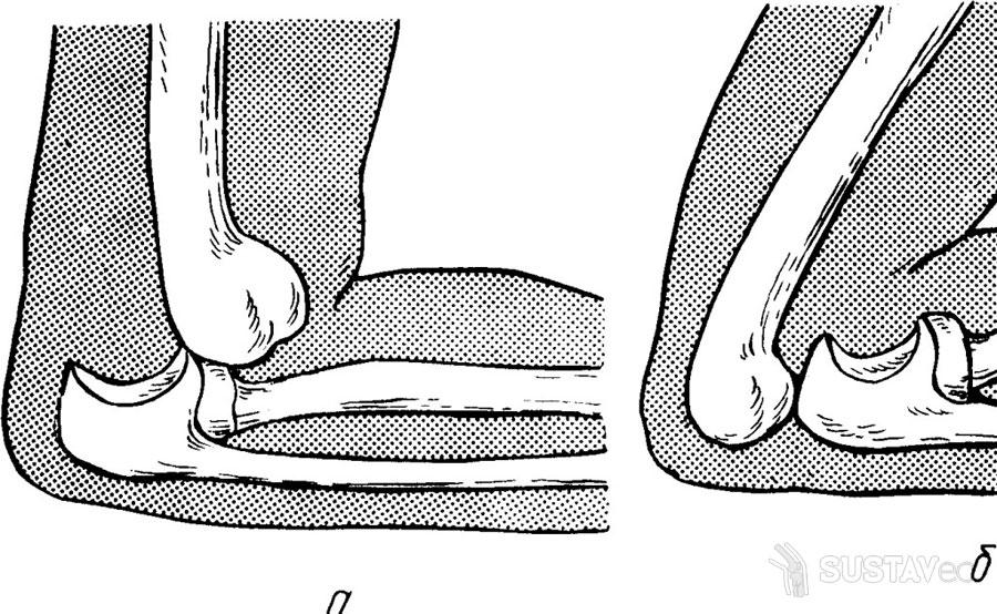 ТОП 6 методов восстановления после вывиха локтевого сустава 27-1