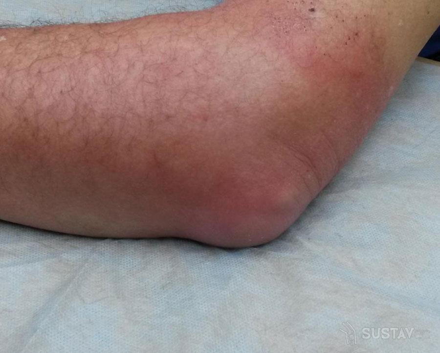 Лечение мазями бурсита локтевого сустава 29-1