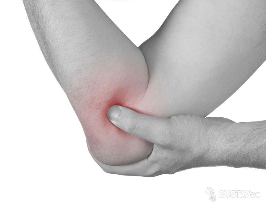 Хрустит локоть — возможные причины 30-1