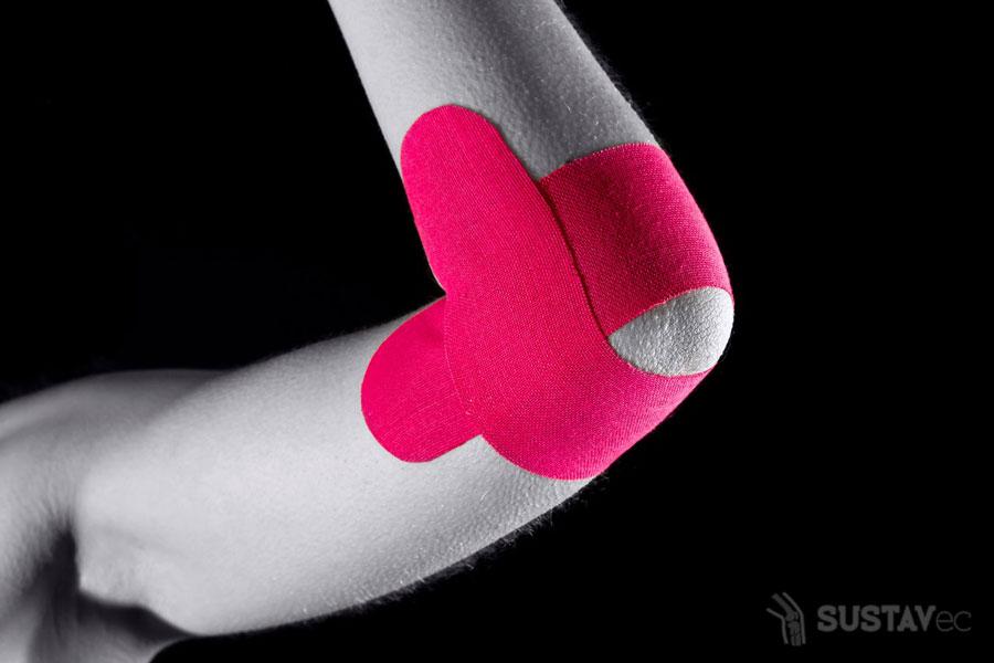 ТОП 6 методов лечения бурсита локтевого сустава 31-6