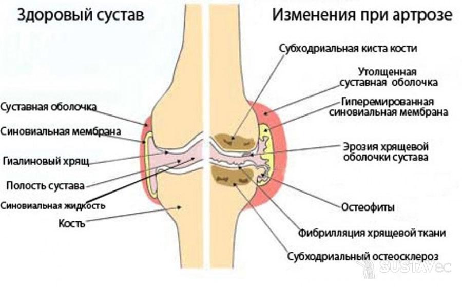 Симптомы и лечение артроза локтевого сустава: 20 эффективных процедур 32-1