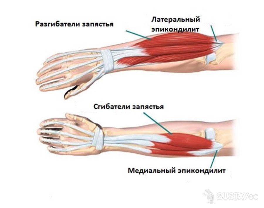 Симптомы и лечение артроза локтевого сустава: 20 эффективных процедур 32-2