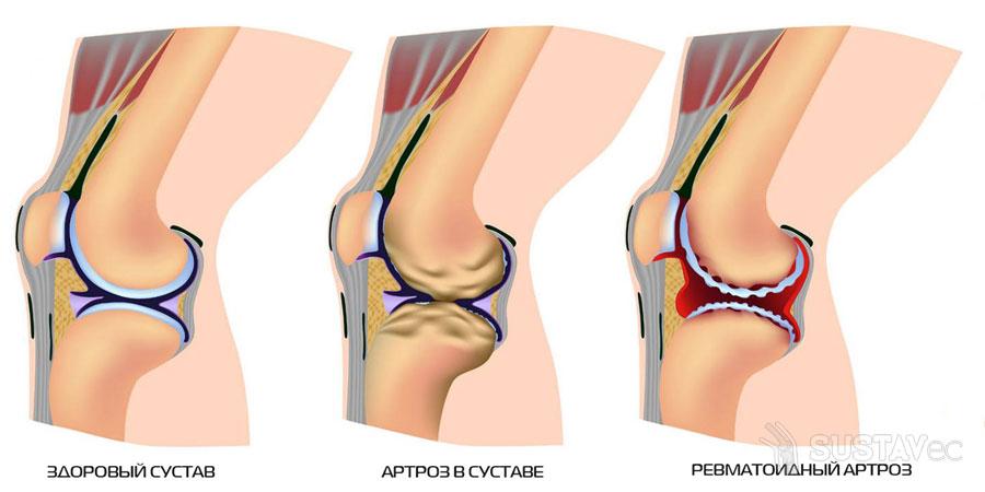 Симптомы и лечение артроза локтевого сустава: 20 эффективных процедур 32-3