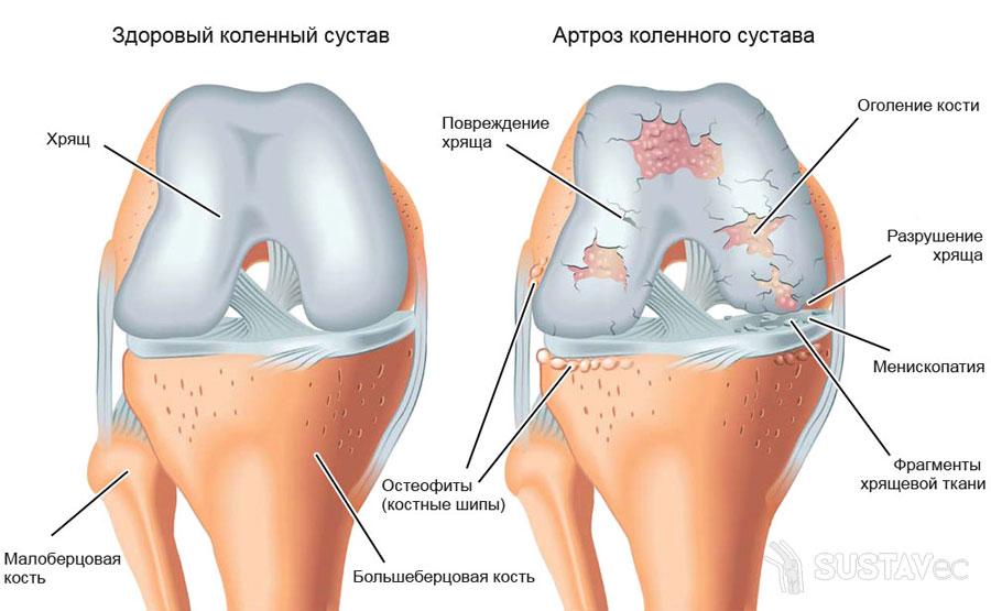 Остеоартроз локтевого сустава и его степени 33-1