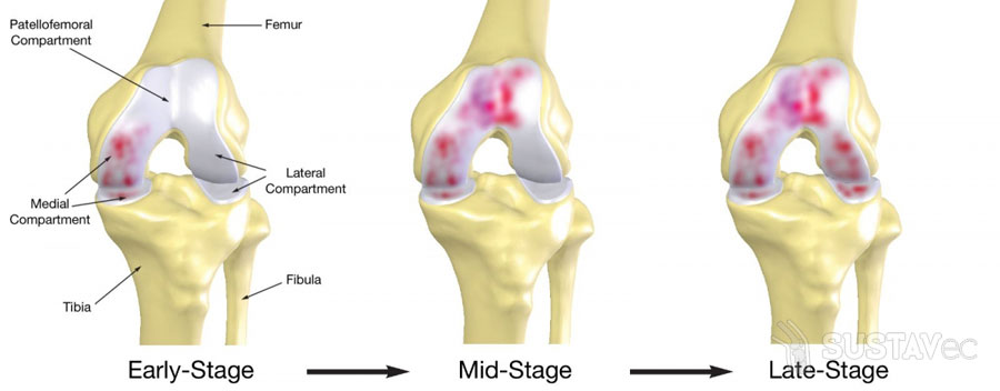 Остеоартроз локтевого сустава и его степени 33-2