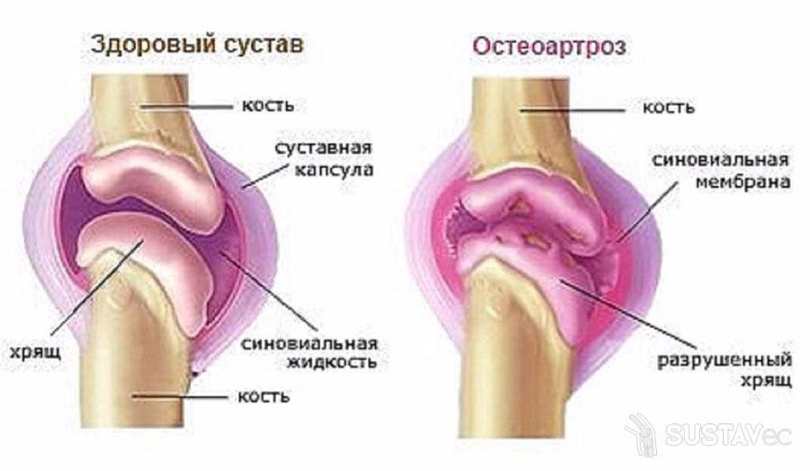 Остеоартроз локтевого сустава и его степени 33-3
