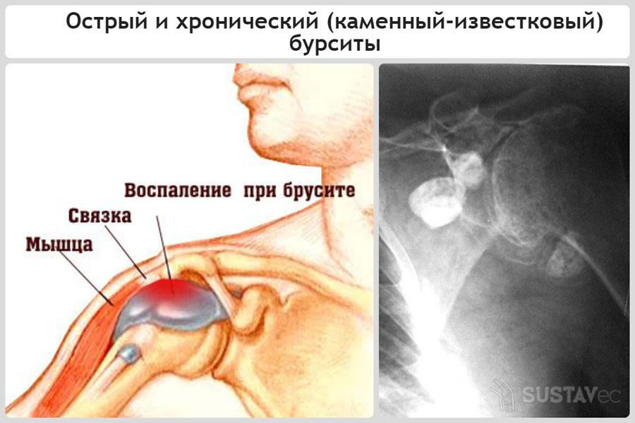 Причины опухоли локтевого сустава 34-1