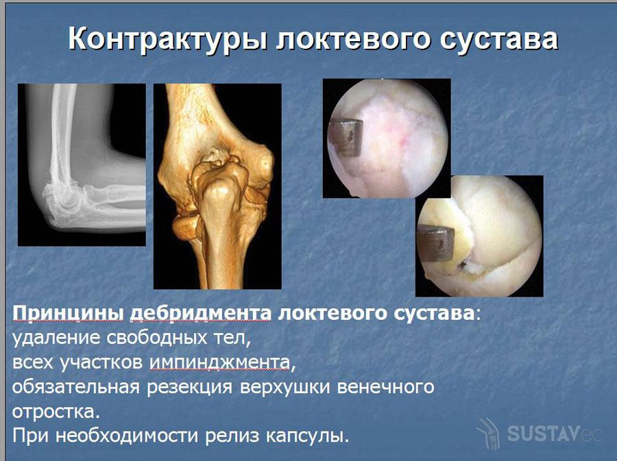 Что такое контрактура локтевого сустава? 38-1