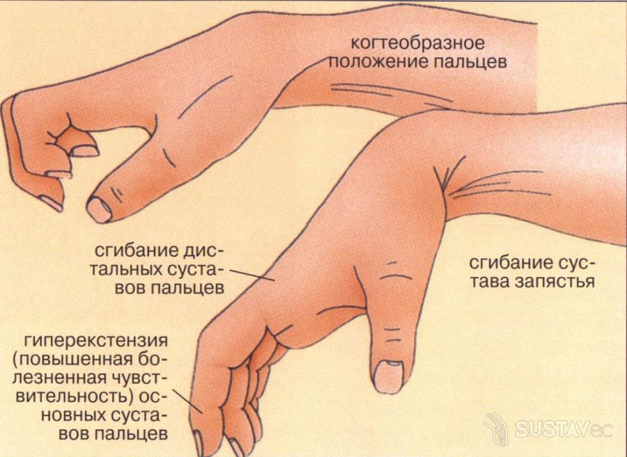 Что такое контрактура локтевого сустава? 38-2