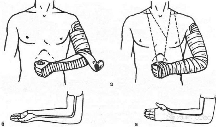 Что такое контрактура локтевого сустава? 38-4