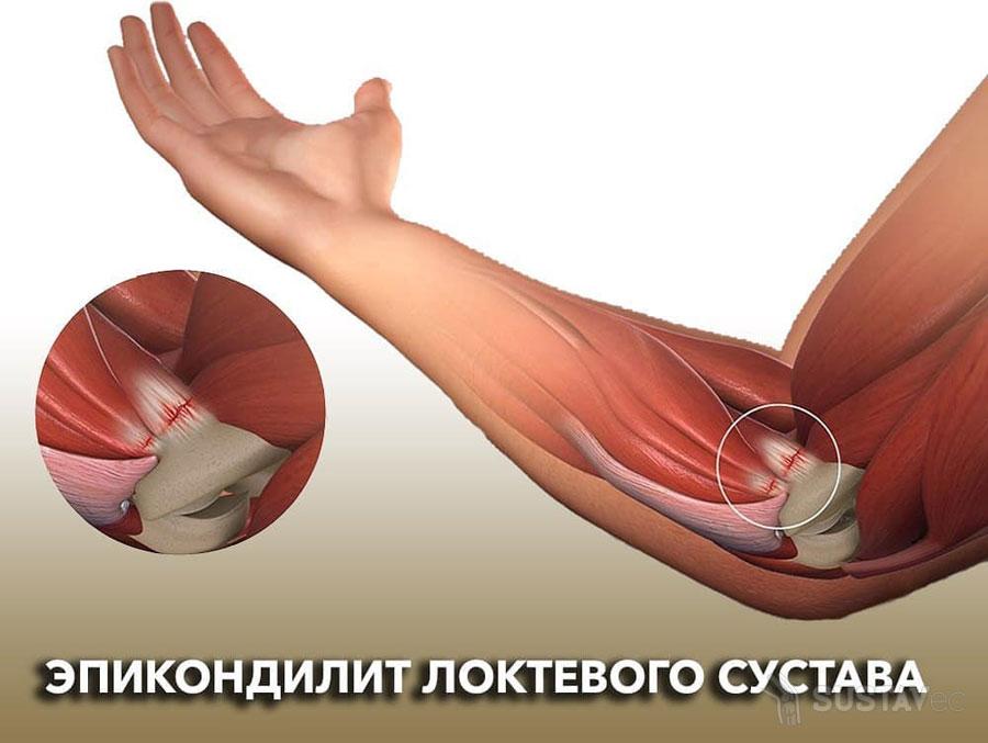 Симптомы и лечение эпикондилита локтевого сустава 4-1