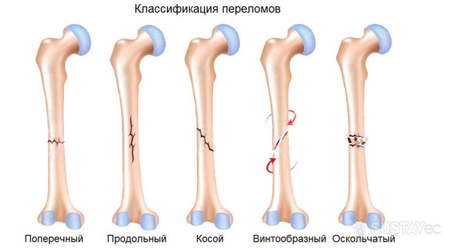 Переломы венечного отростка локтевой кости 40-1
