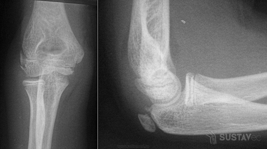 Переломы венечного отростка локтевой кости 40-2