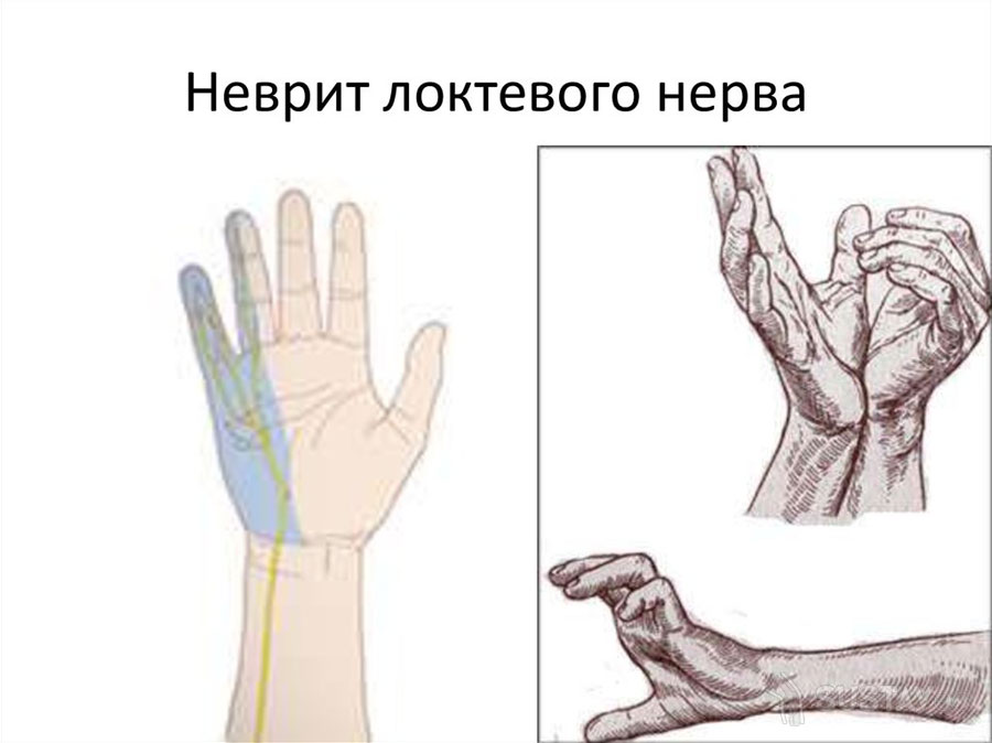 Симптомы и лечение неврита локтевого нерва 41-2