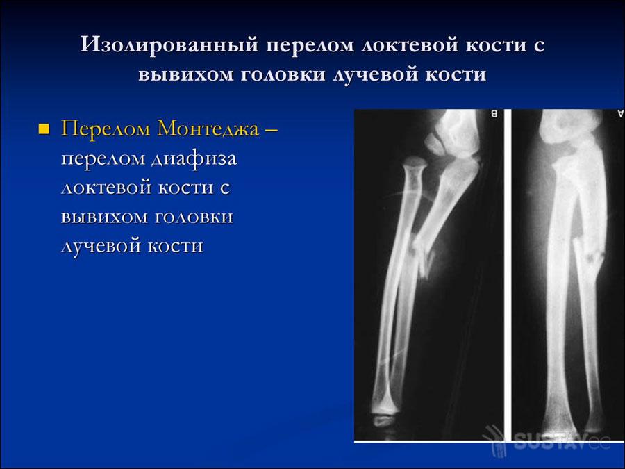 Перелом локтевой кости: все от первой помощи до реабилитации 43-3