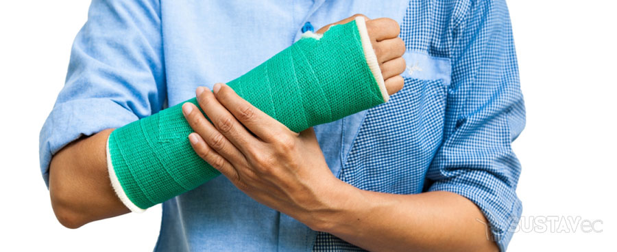 Перелом локтевой кости: все от первой помощи до реабилитации 43-7