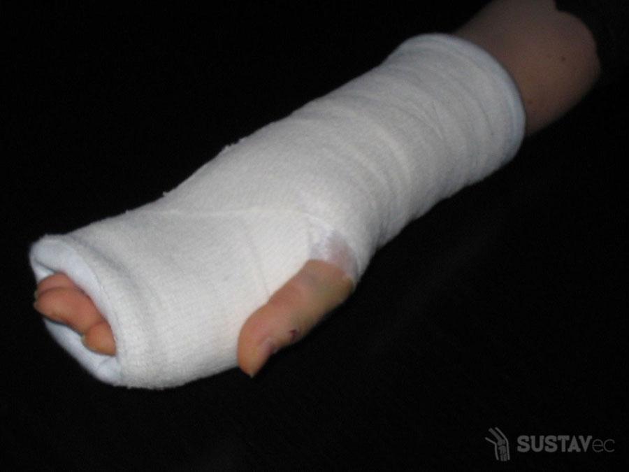 Комплекс упражнений для разработки локтевого сустава после перелома 45-1