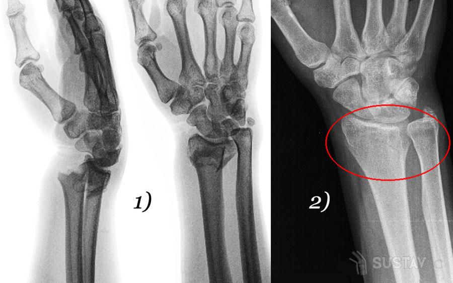 Шиловидный отросток локтевой кости: его расположение и назначение 46-2