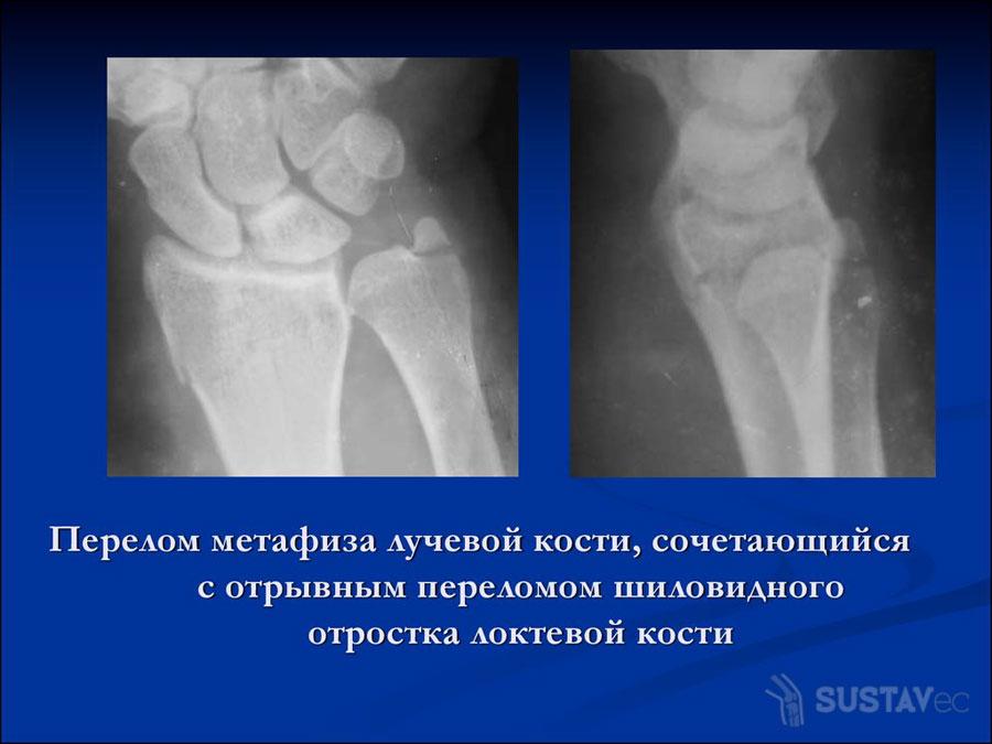 Шиловидный отросток локтевой кости: его расположение и назначение 46-3