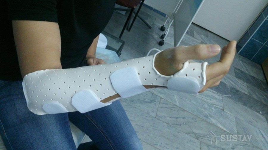 Шиловидный отросток локтевой кости: его расположение и назначение 46-5