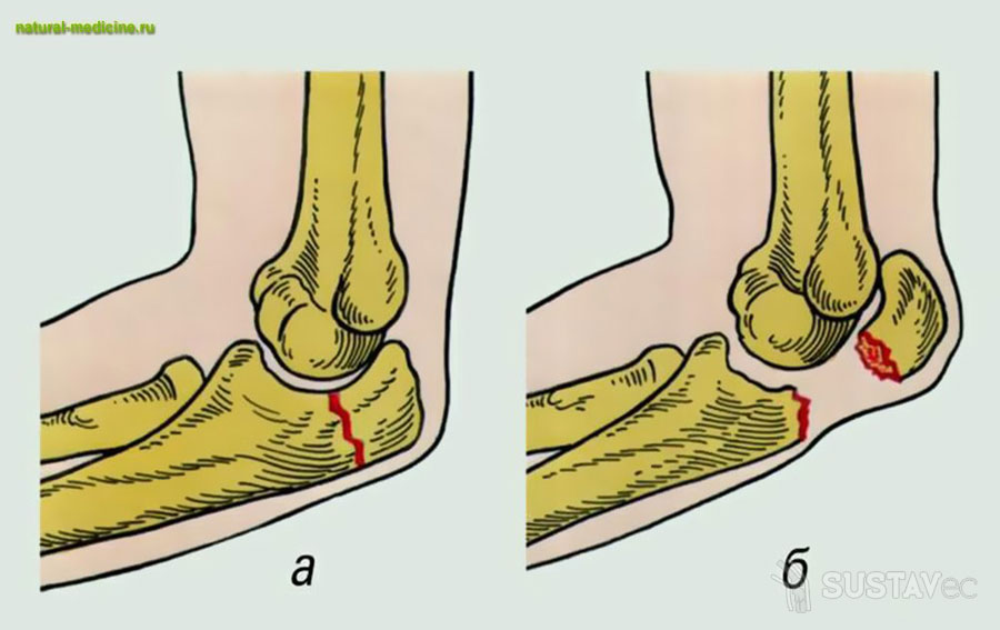 Виды травм локтевого сустава 47-2