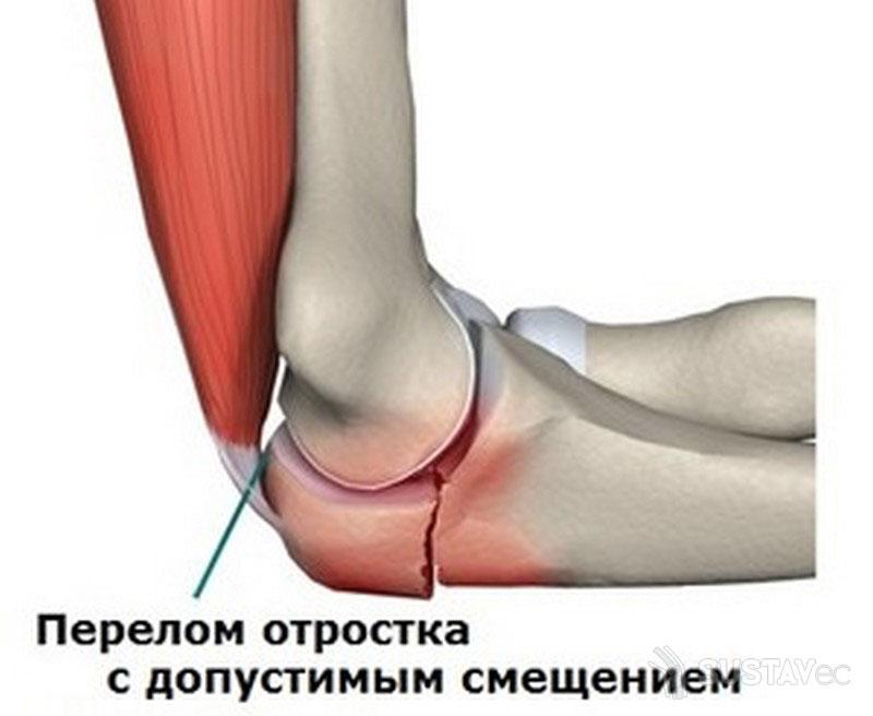 Перелом локтевого отростка локтевой кости 49-1