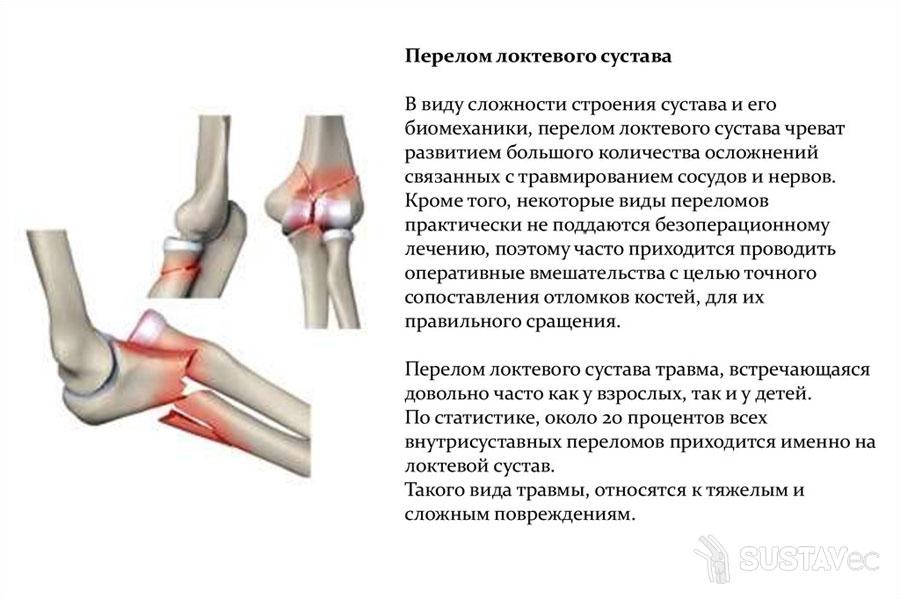 Перелом локтевого отростка локтевой кости 49-2