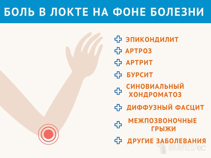 ТОП 15 методов лечения болей в локтевом суставе 5-1