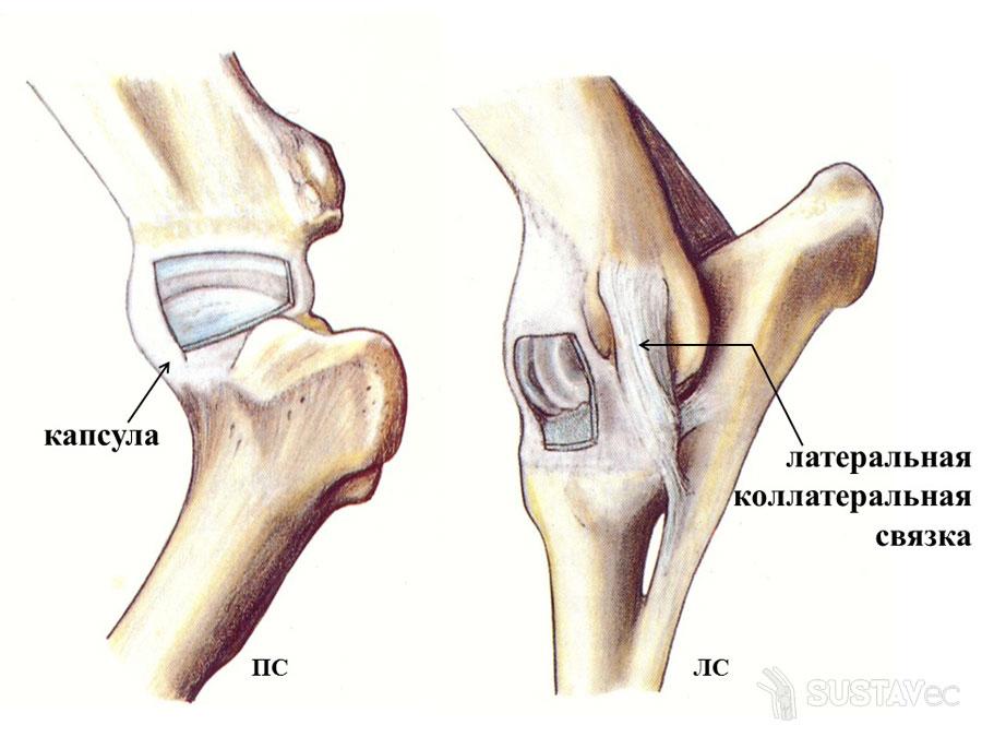ТОП 15 методов лечения болей в локтевом суставе 5-6