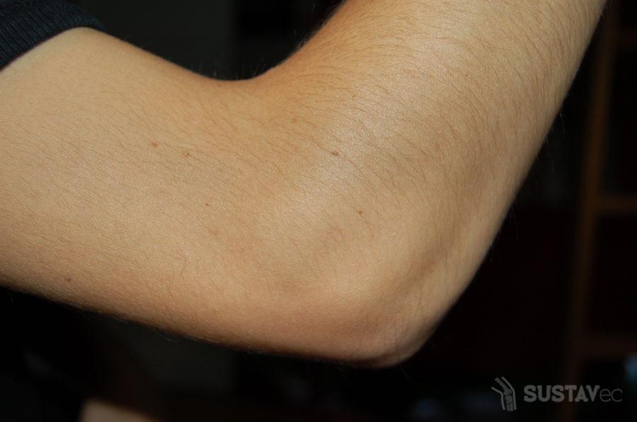 Причины и симптомы воспалений локтевого сустава 50-1