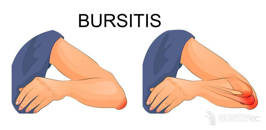 Симптомы и лечение бурсита локтевого сустава 53-1