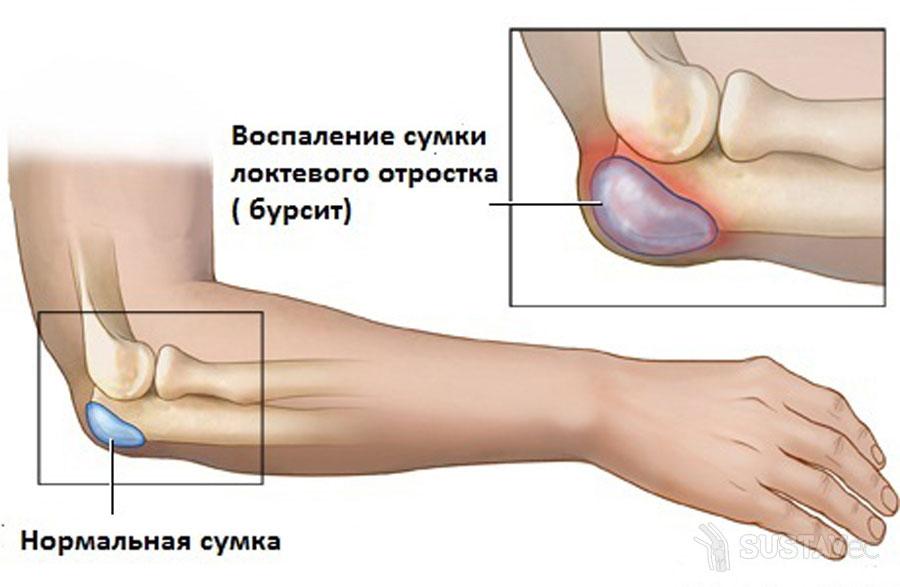 Симптомы и лечение бурсита локтевого сустава 53-2