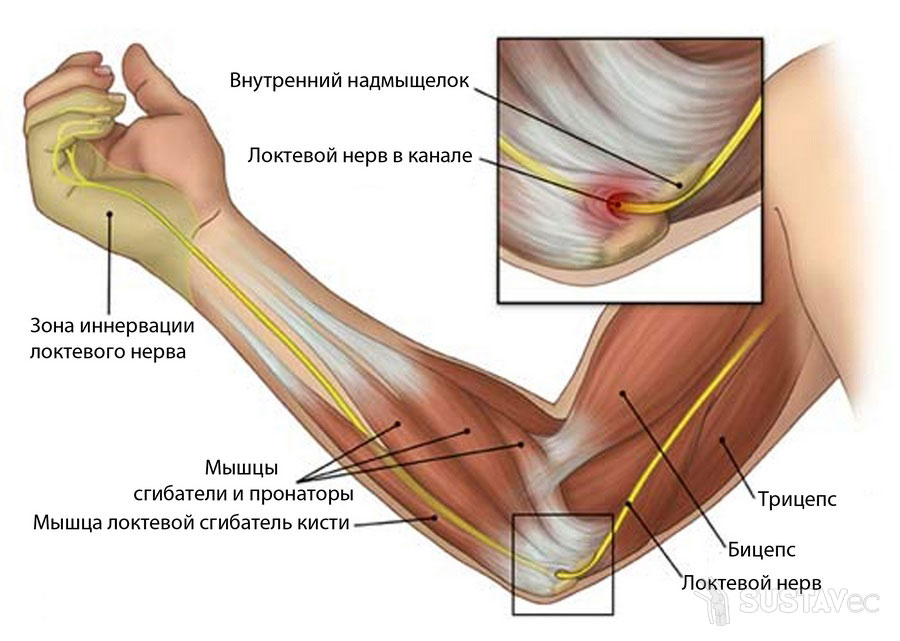 Лечение туннельного синдрома локтевого нерва 55-2